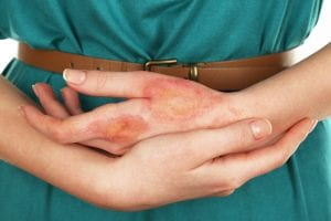 Patient with laceration at urgent care in Stockton, CA